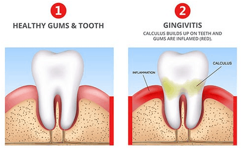 Causes OfBleeding Gums (Gingivitis)