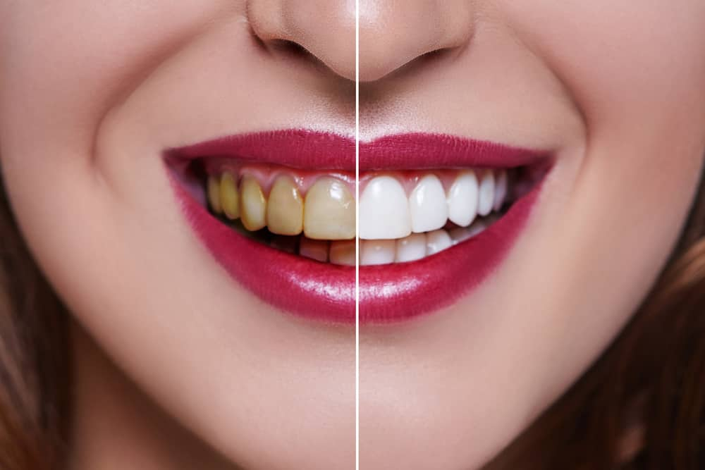 discoloured-and-clean-veneers