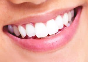 Smile-With-Dental-Veneers