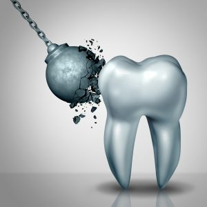 Poor-Oral-Health-Damage-Teeth