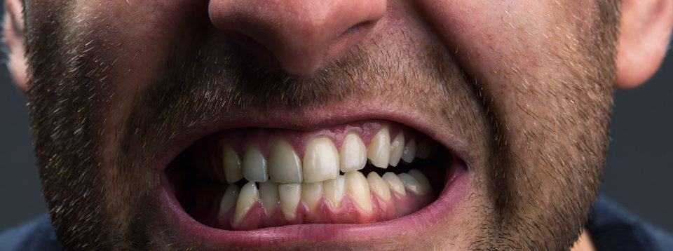 damage from teeth grinding habit